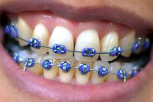 Is Adult Orthodontics Right For You?