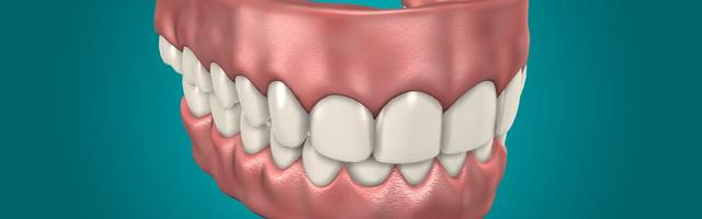 Dental Implants Versus Dentures: Which to Choose and Why?