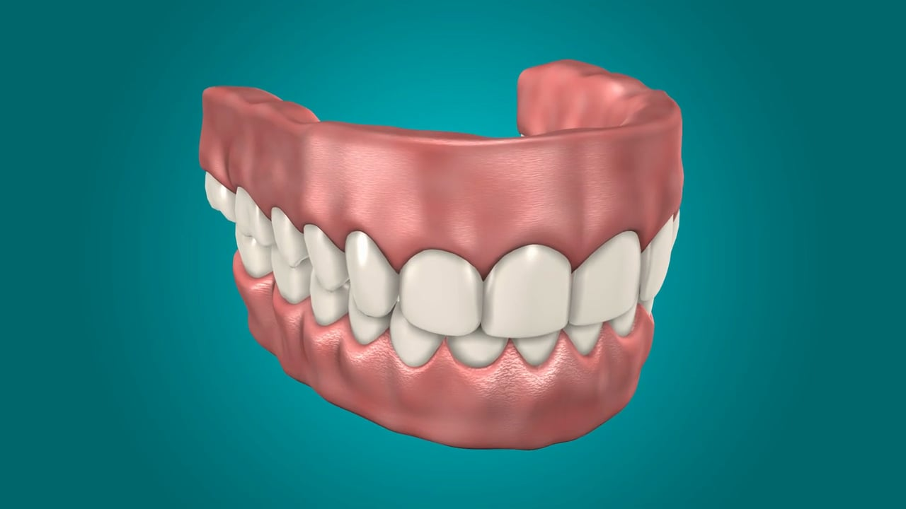 Dental implant supported overdentures